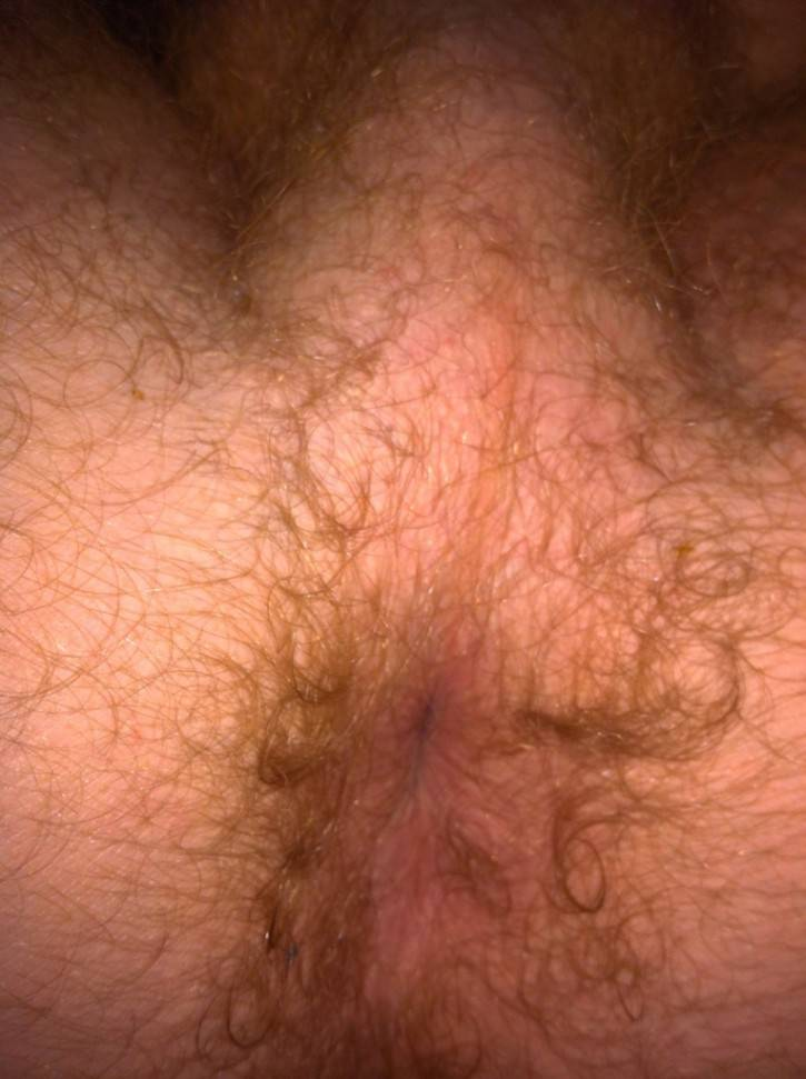 Want To See James Jamessons Hairy Asshole Up Close Via -3127