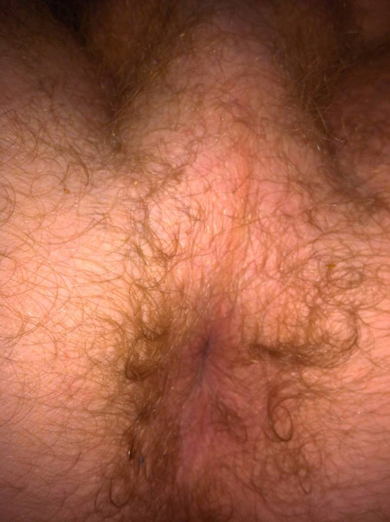 Want To See James Jamessons Hairy Asshole Up Close Via -6743
